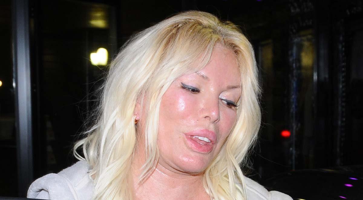 Ajda Pekkan'ın yüzündeki şişlik merak konusu oldu