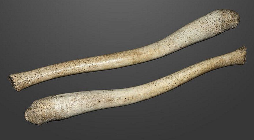 Bilim insanları insanlarda penis kemiğinin neden yok olduğu sorusuna yanıt verdi