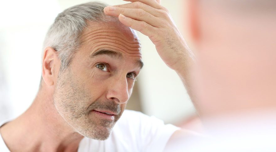 Saç ekiminde dikkat edilmesi gereken 4 nokta