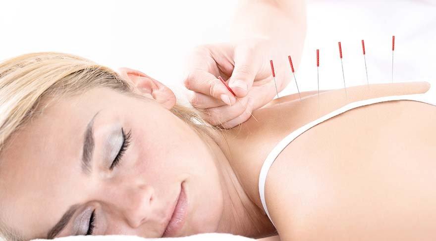 Akupunktur tüp bebekte başarı şansını artırır mı?