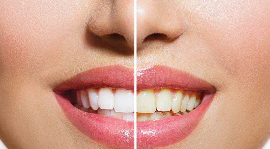Diş beyazlatma kalıcı mı?