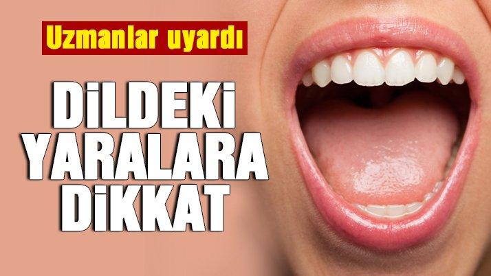 Dildeki yaralara dikkat!