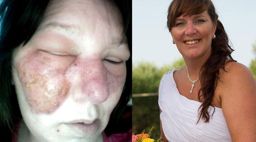 Yüzünü kaşıdı doktorlar şoke oldu! Hayatını kaybedebilir