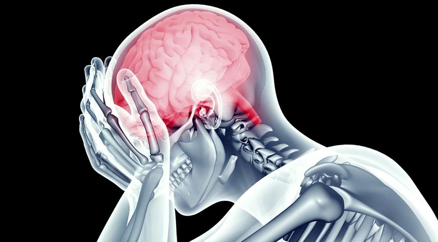 Baş ağrısını 40 saniyede geçiren formül