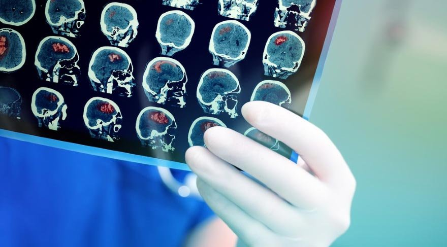 En sık görülen hipofiz tümörleri ve belirtileri