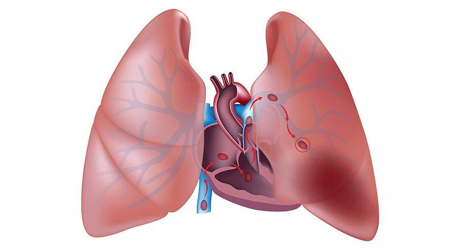 akciger-embolisi