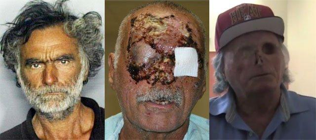 miami-zombie-victim-pictures