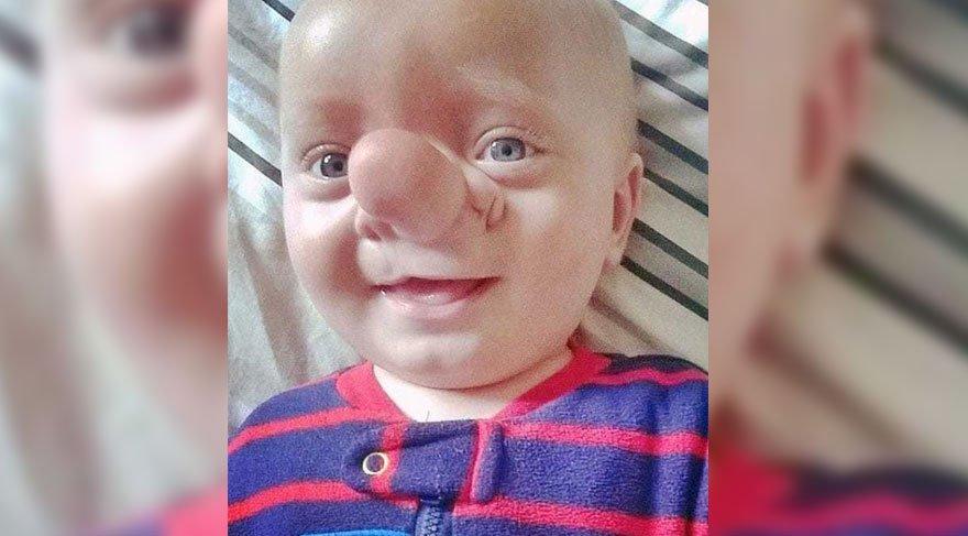Minik Ollie'yi görenler Pinokyo'ya benzetiyorlardı! 3 yıl sonra bakın nasıl değişti?