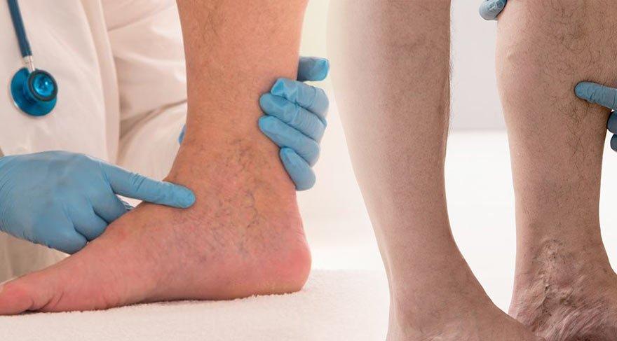 Kronik Derin Ven Trombozu belirtileri ve tedavisi