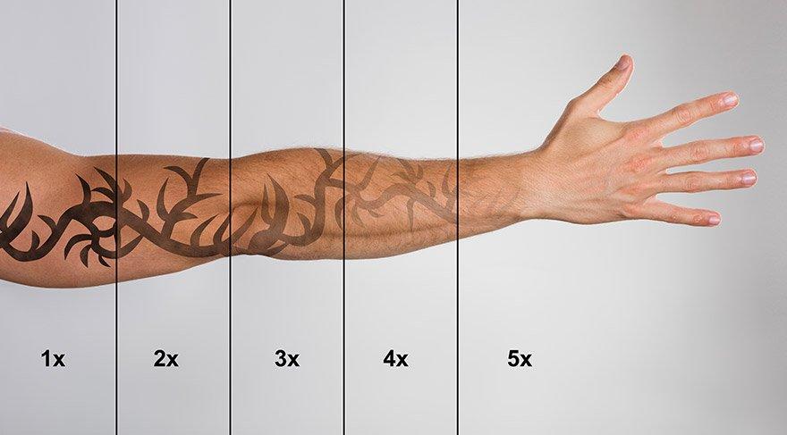 En etkili dövme sildirme yöntemi hangisi?