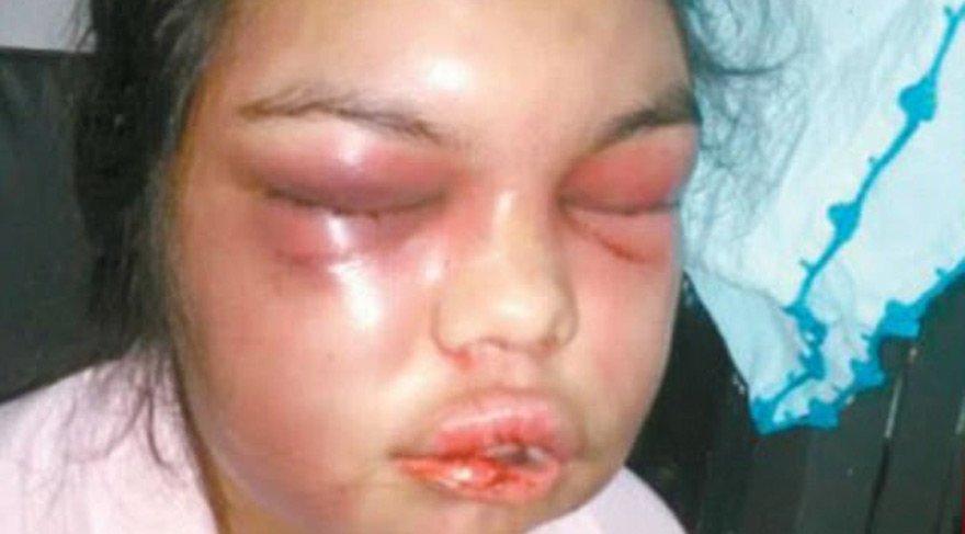 Kadına şiddette bu kadarı da olmaz… Her beğeniye bir yumruk attı