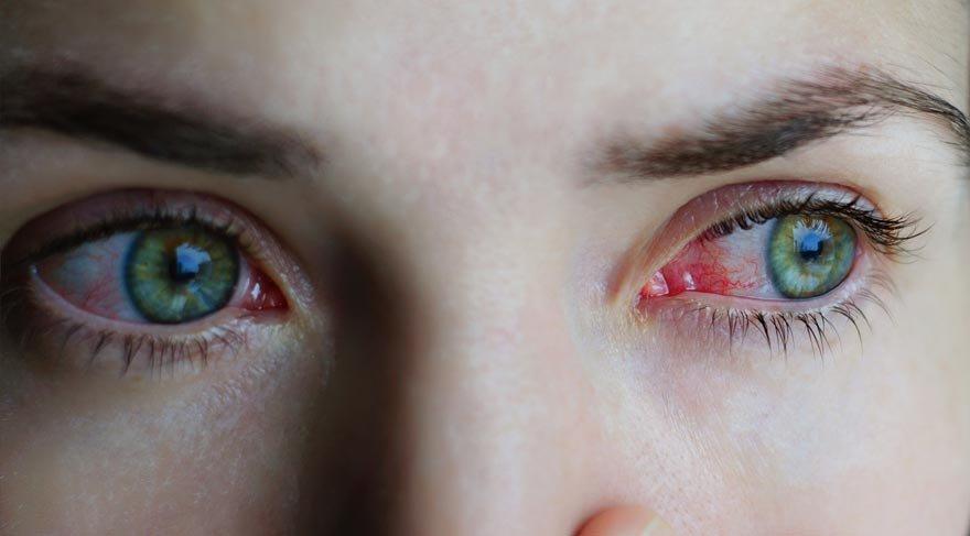 Göz sağlığıyla ilgili bilinmeyenler