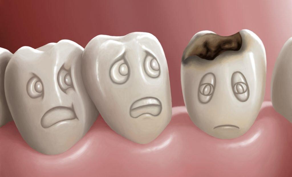 Bir dişin ölmesi ne demektir?