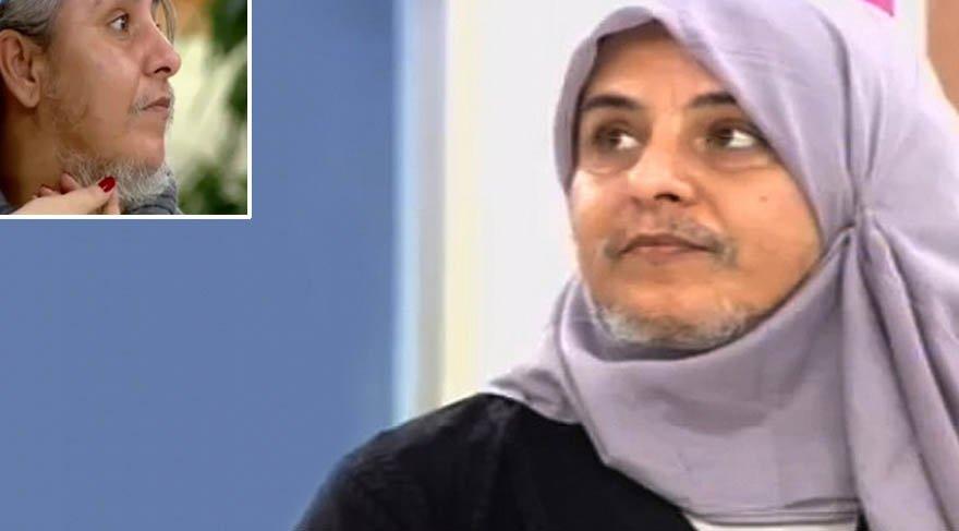 Zahide Yetiş'in programına çıkan sakallı kadın, doğal görünümüne kavuştu