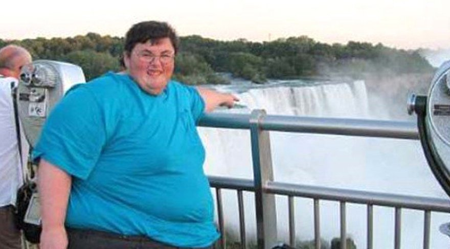 308 kiloya ulaştı, doktorlar öleceğini söyleyince bambaşka biri oldu!