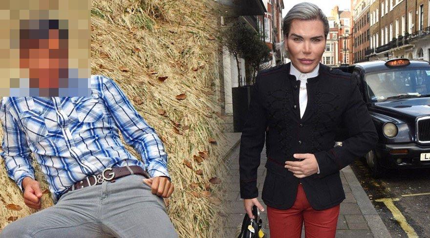 Estetik bağımlısı Rodrigo Alves'in, estetiksiz hali ortaya çıktı!