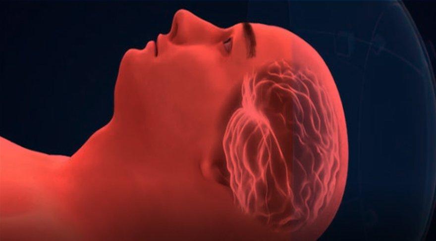 Titreme ve Parkinson tedavisinde derin beyin ultrasonu mucizesi!