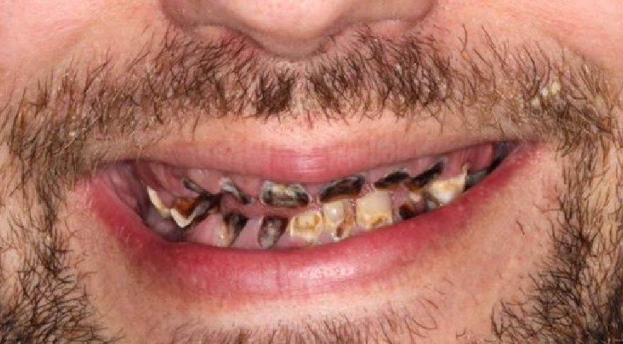 Bu bağımlılık tüm dişlerini paramparça etti!