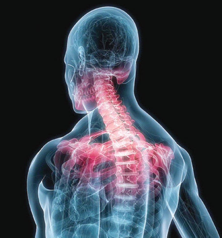 Omurganın sıkışma kırığı, semptomları, nedenleri ve tedavisi