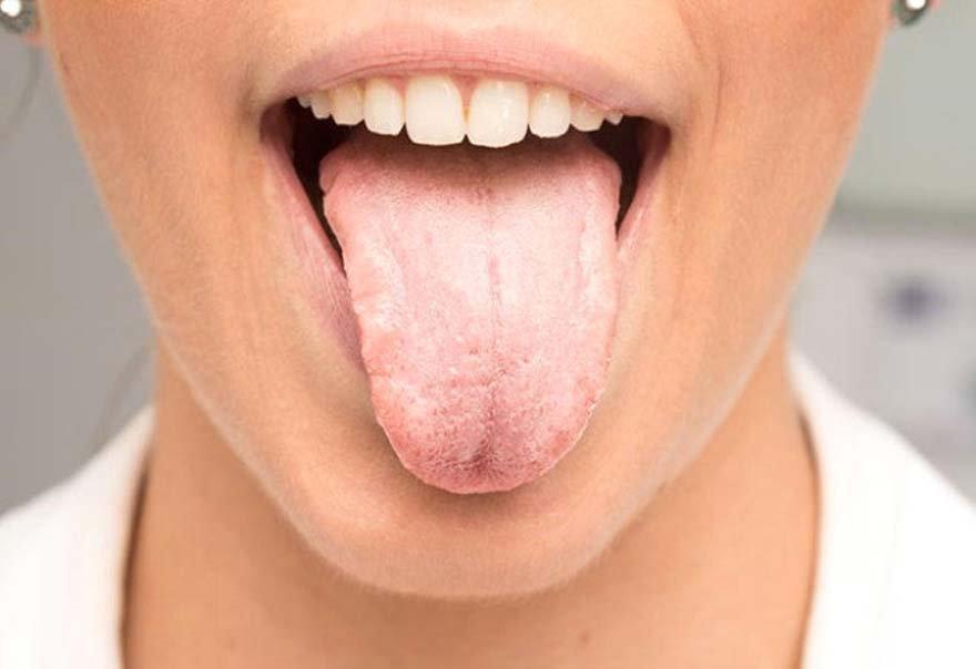 dil-kanserinin-en-erken-belirtileri-2-711033_7961_4_b