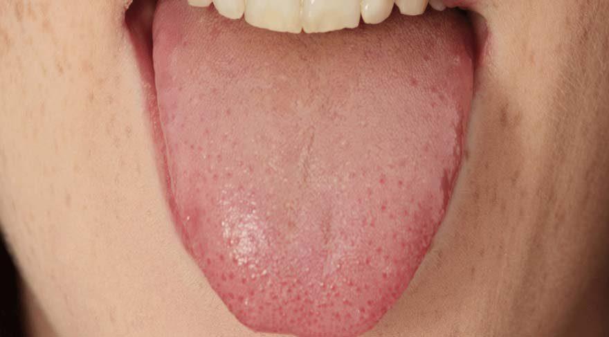 Dil kanserinin en erken belirtileri