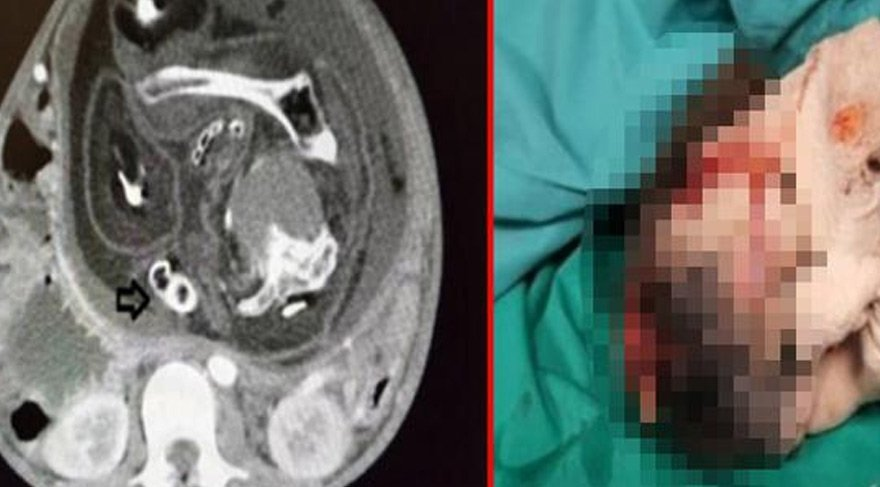 Çocuk mide bulantısıyla hastaneye gitti, doktorlar bile şoke oldu!