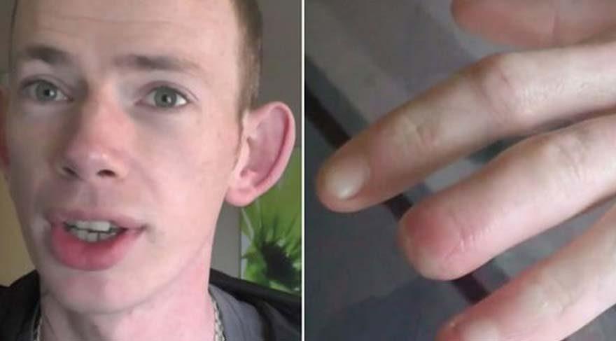 Gizemli 4 saat! Yemeğini yedi kendini otobüs durağında parmağı kopmuş halde buldu