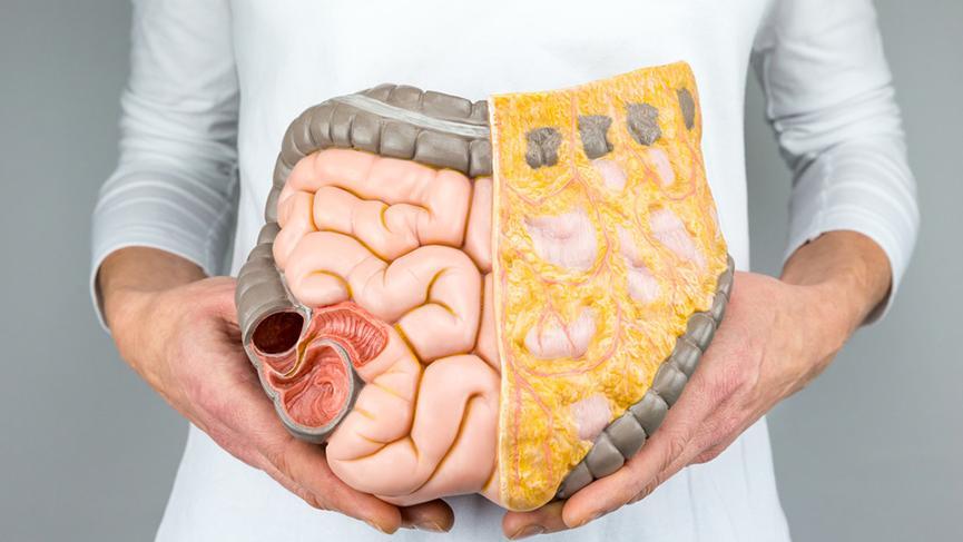 Geçirgen bağırsak sendromunun 7 nedeni