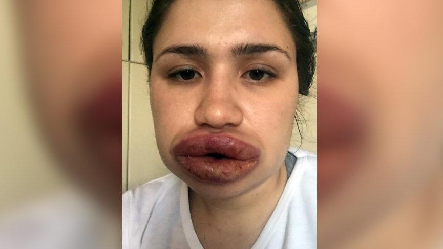Silikon mağduru Merve hemşirenin dudakları eski haline döndü