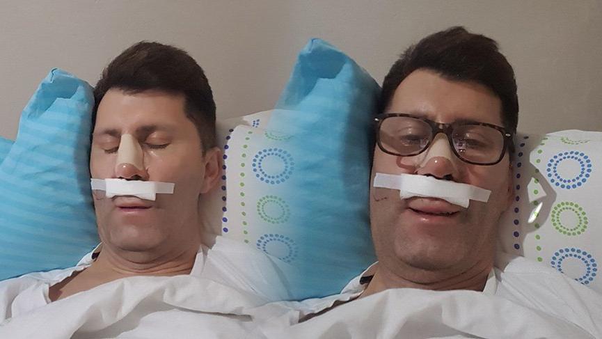 Oyuncu Ahmet Çevik ameliyat oldu