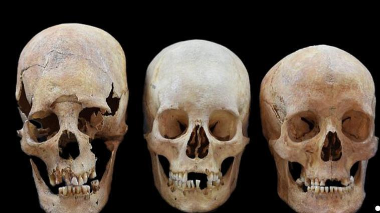 DNA analizi, Avrupa'nın ortasında, uzun kafatasına sahip Hun Türkü gelinlerini ortaya çıkardı!