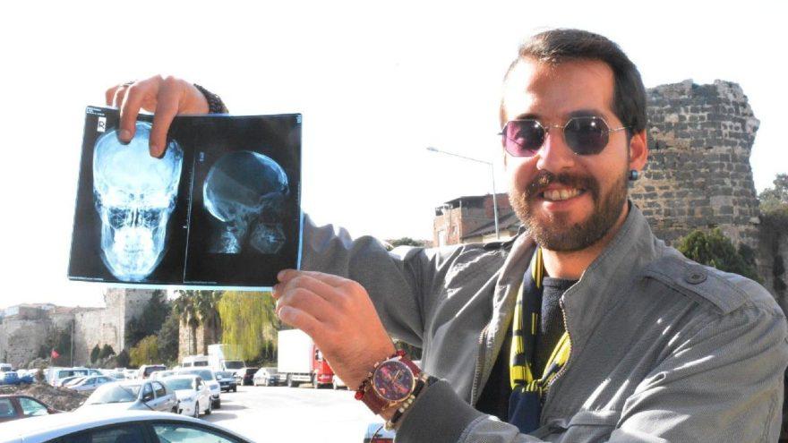 Tomografisi çekildi şoke oldu! Beyninde diş çıktı