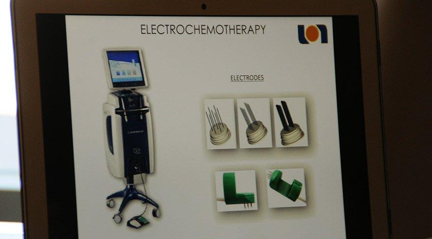 Elektrokemoterapi, Türkiye'de sadece İzmir'de uygulanıyor