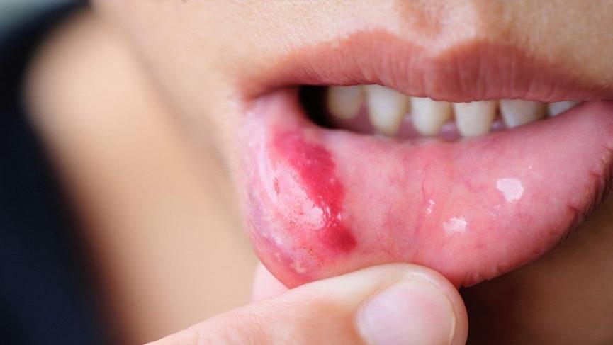 Aft nedir? Ağız yarası nedenleri ve ağız ülseri tedavisi...