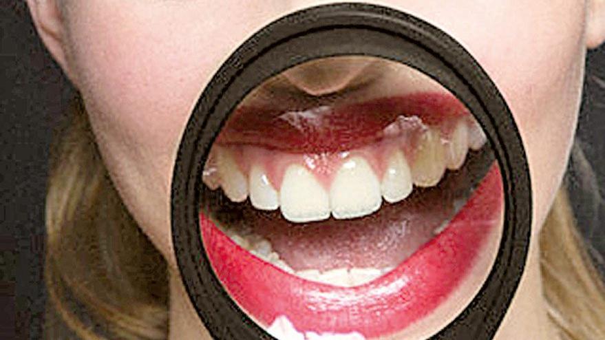 Sağlıklı dişler için 10 özel besin