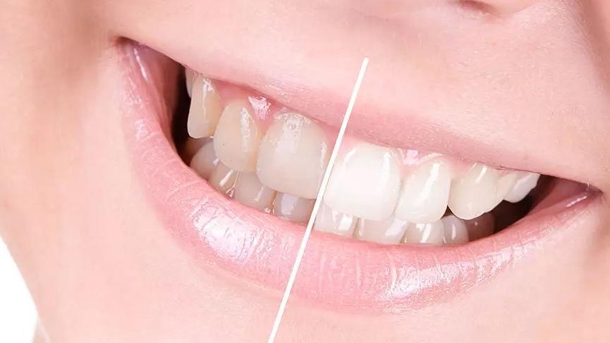 Çilek ile karbonatı ezin dişlerinize sürün! Değişimi göreceksiniz!