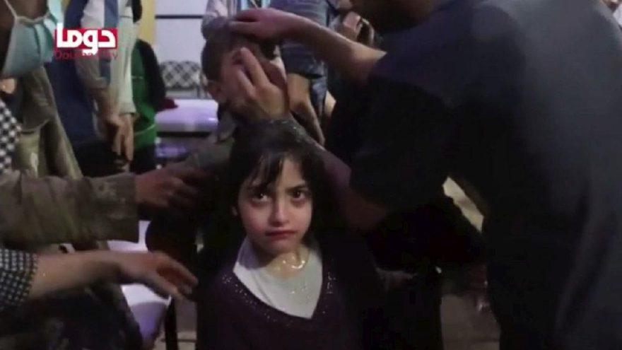 Kimyasal saldırıya maruz kalan küçük kız anlattı