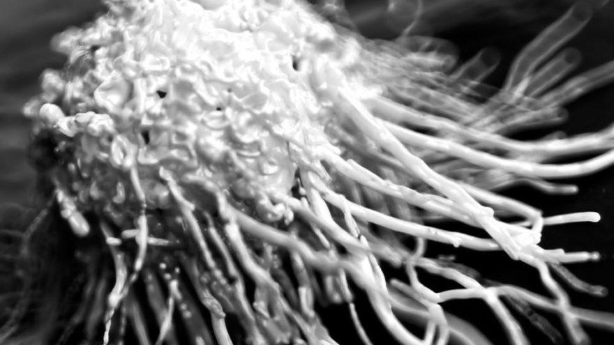 Türkiye'de her yıl 163 bin kişiye kanser tanısı konuluyor