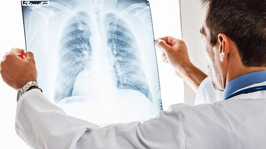 'Elektronik sigaranın zararı yıllar sonra görülecek'