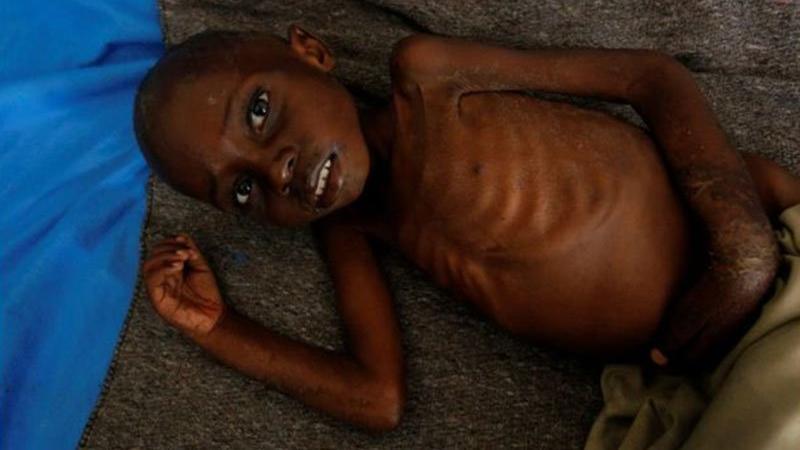 BM açıkladı: 400 bin çocuk risk altında