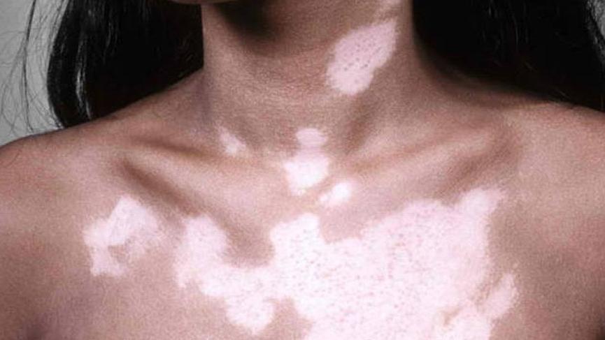 Vitiligo nedir? İşte belirtileri ve tedavi yöntemleri...