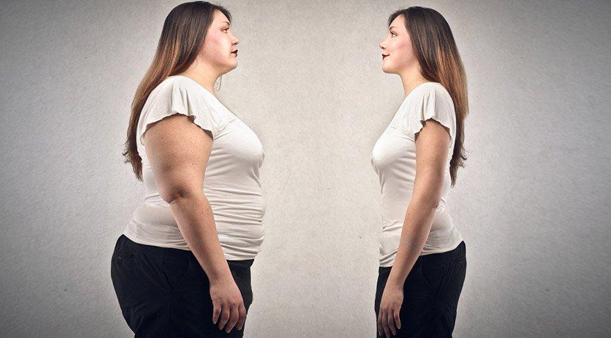 obezite-ameliyati-shutter