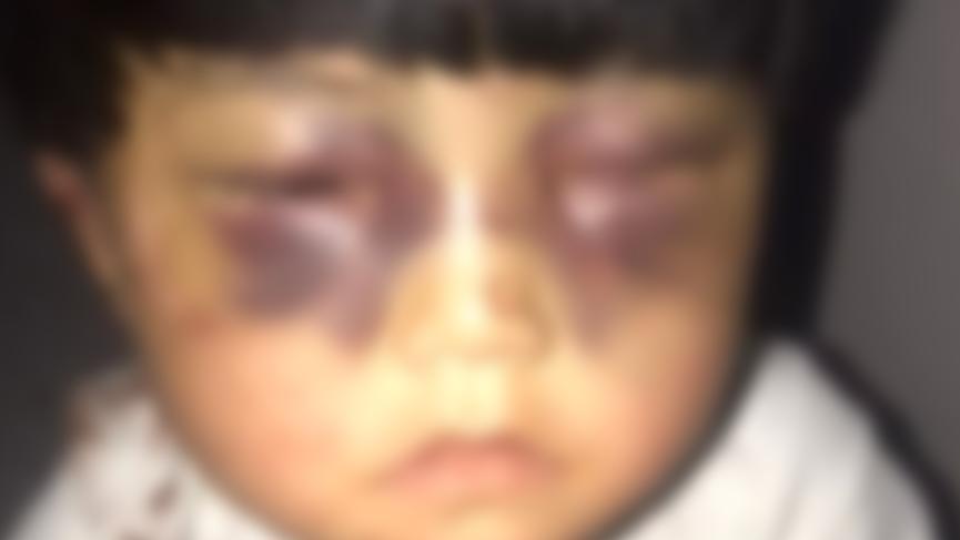 Babasından 5 yaşındaki kıza akılalmaz işkence: Tuvalete zincirledi