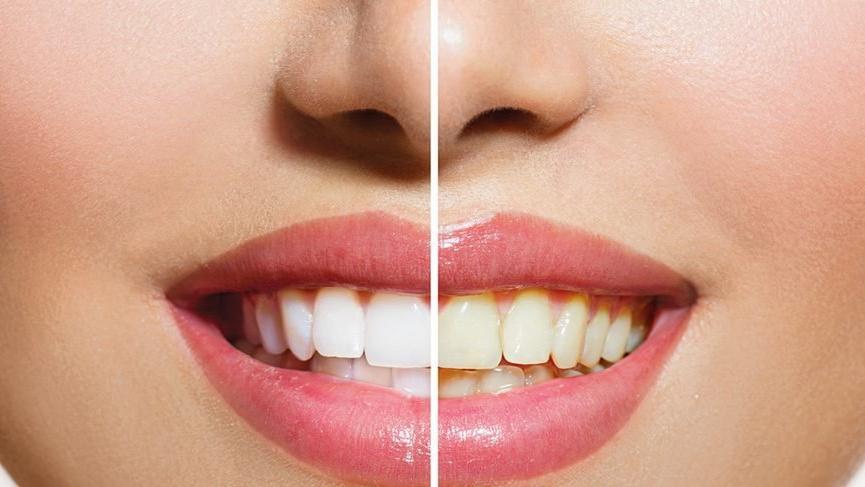 Diş beyazlatma nedir (Bleaching)? Diş beyazlatma yöntemleri