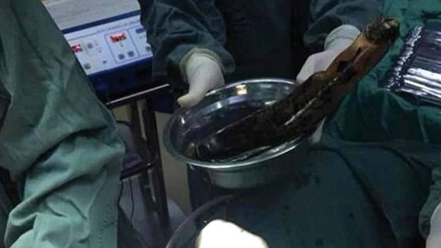 Adamın anüsünden 30 cm'lik patlıcan çıktı! Nedeni doktorları şoke etti
