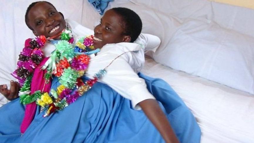 Tüm ülkenin sevdiği yapışık ikizler hayatını kaybetti