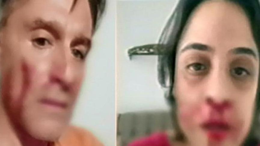 Hazım Körmükçü ve Zeynep Tandoğan canlı yayında yüzleşti! Olay kareler…