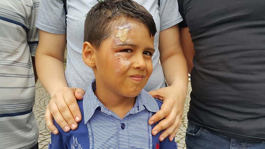 Minik Efe'nin yüzüne otobüste kaynar su döküldü