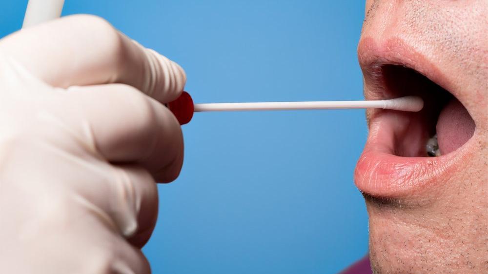 Prostat kanseri tükürükten tespit edilebilir mi?