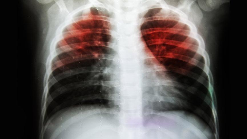Tüberküloz (Verem Hastalığı) nedir? Tüberküloz belirtileri ve tedavisi...